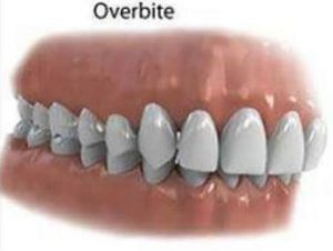 Orthodontics and Orthododntic problems - Overbite