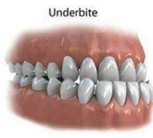 Orthodontics and Orthododntic problems-Underbite