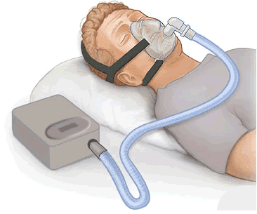 continuous positive airway pressure device CPAP