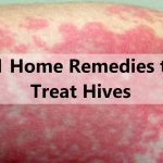 Hives Treatment – 11 Home Remedies that can Provide You Relief
