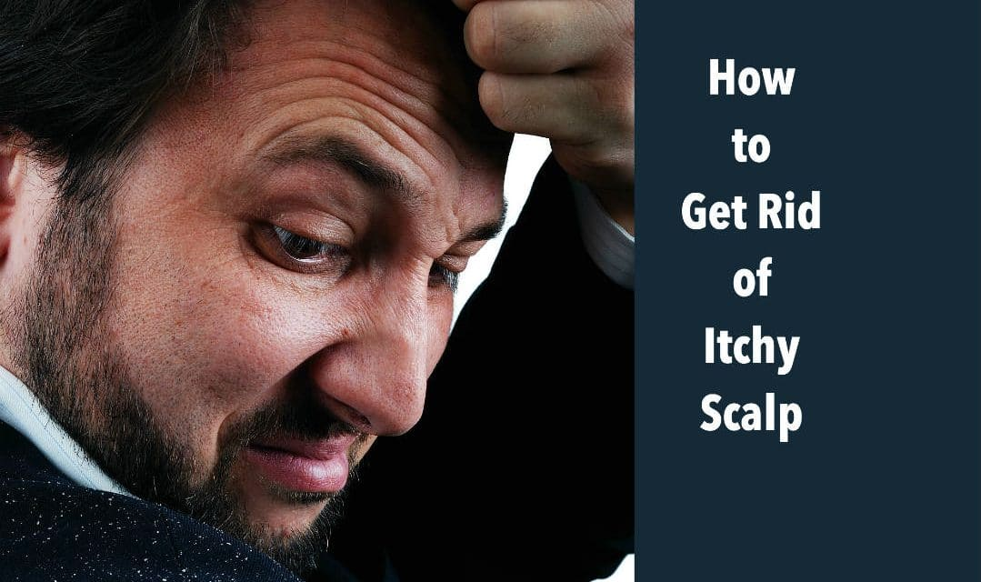 Are You Having Itchy Scalp? 8 Home Remedies to Treat it