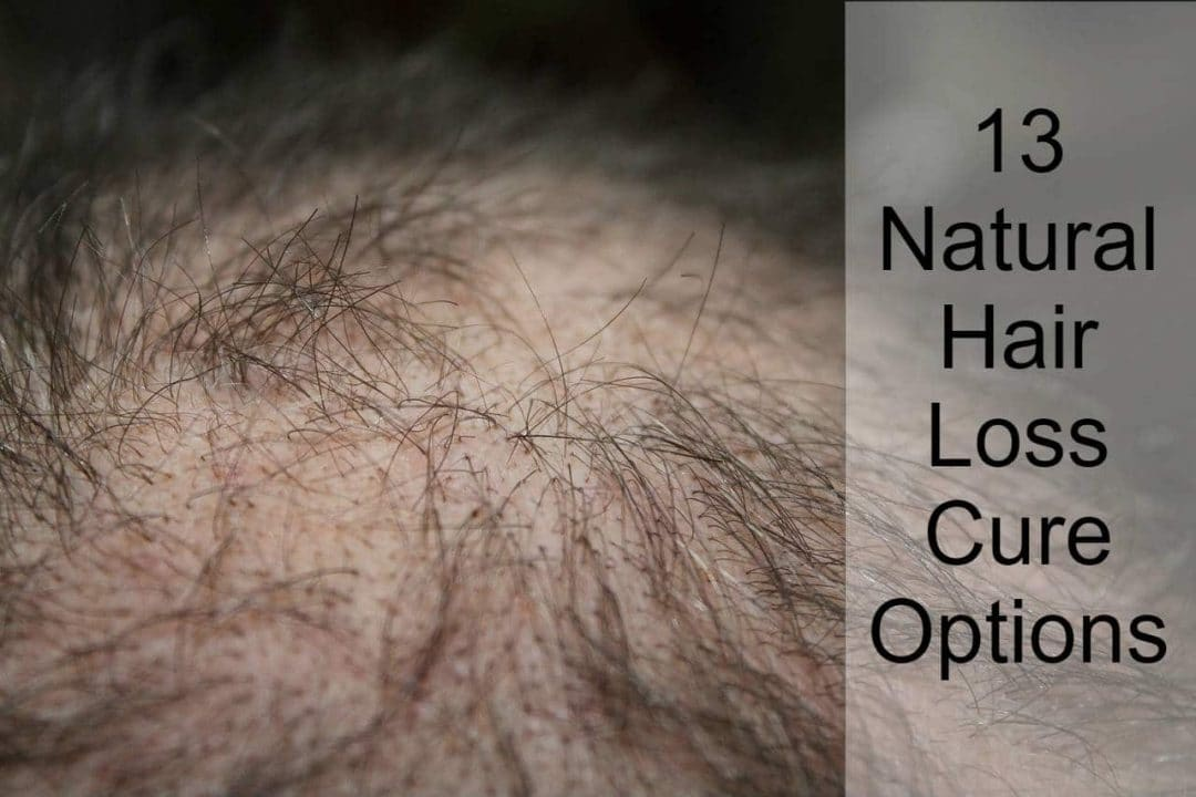natural hair loss cure options