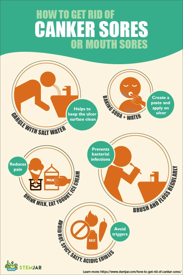 How to get rid of Canker Sores or mouth sore infographic