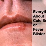 Everything About a Cold Sore or Fever Blister