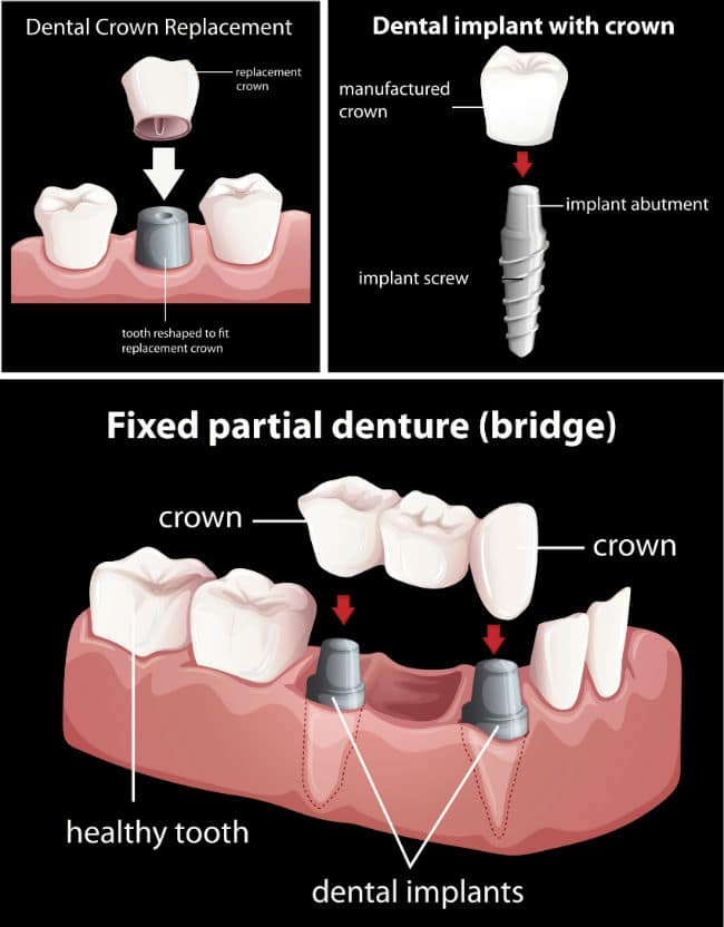 fixed partial denture dental crown replacement