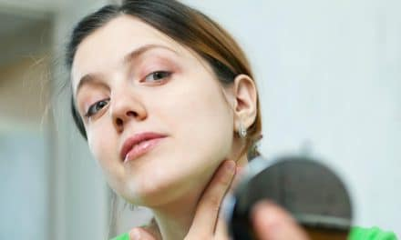 How to Remove Skin Tags at Home? 12 Natural Methods