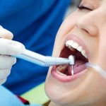 What are Dental Fillings? Types of Tooth Filling With Their Pros & Cons