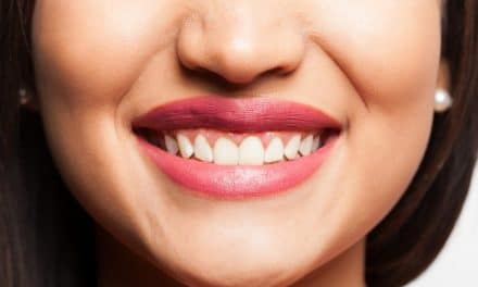 Teeth Whitening Strips – Are They Safe & Effective for Your Teeth?