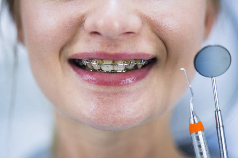 Call your dentist if you have broken braces bracket. Meanwhile, use orthodontic wax to cover it up. Also, clip extra wires using nail clipper