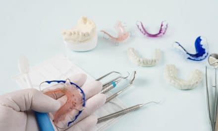 Permanent Retainer Removal – When You Should Consider This?