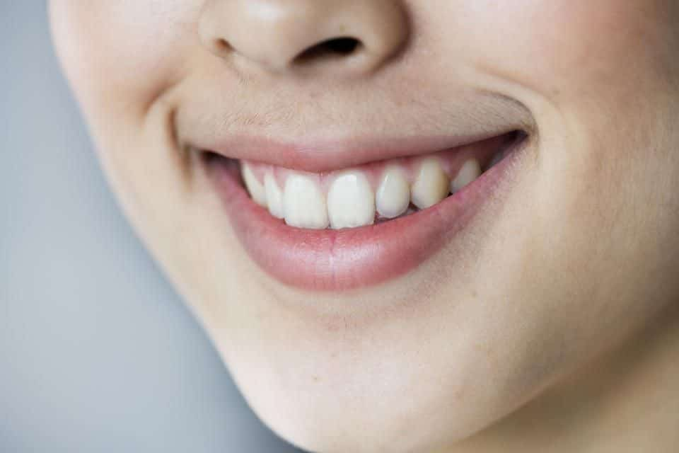 Yellow Teeth – Myths, Causes, and Treatment Options