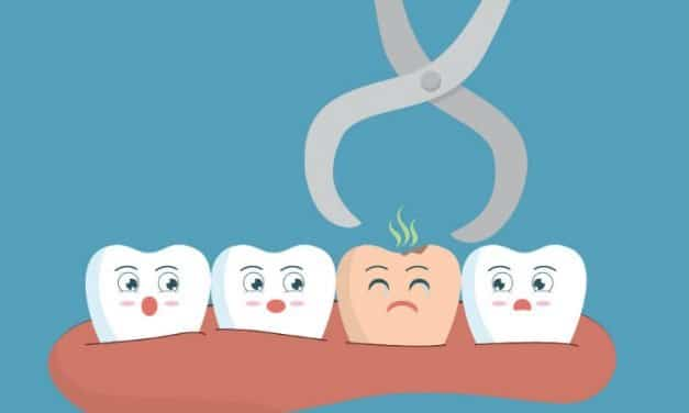 Wisdom Teeth Removal Cost – All You Need to Know