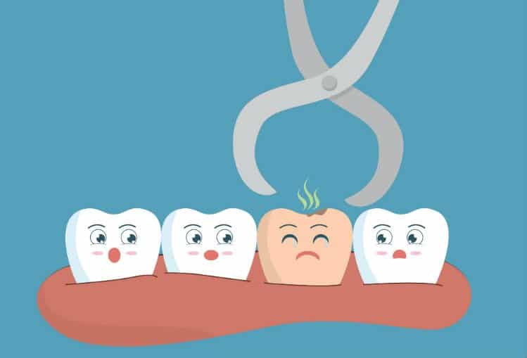 Know Wisdom Teeth Removal Cost