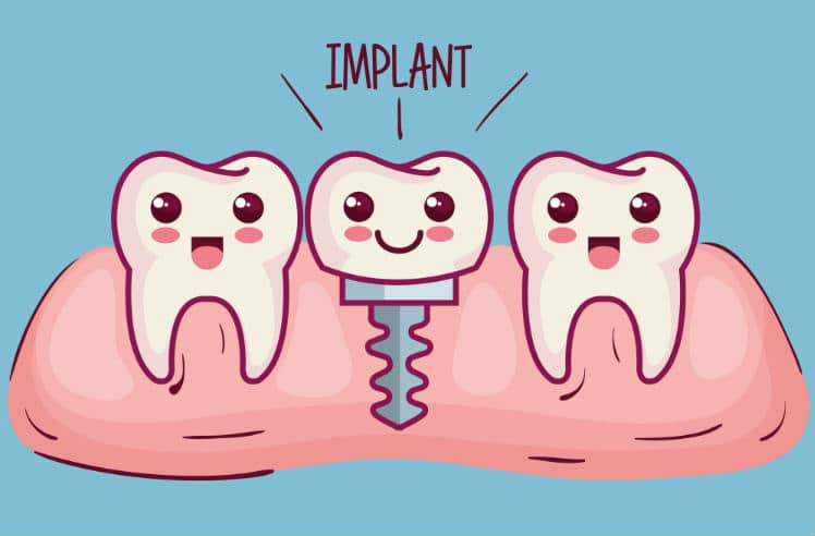 Single Tooth Implant – When Should You Go for It?