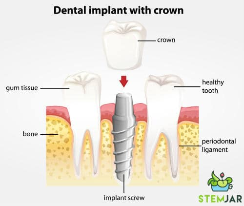 single tooth implant representation