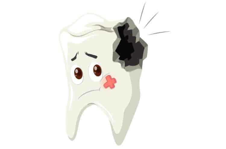 What to Do If Your Tooth Broke in Half? First Aid & Treatment Options