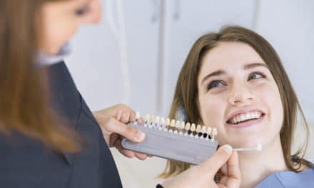 Tooth Shade Guide for Teeth Whitening or Dental Crown Procedure