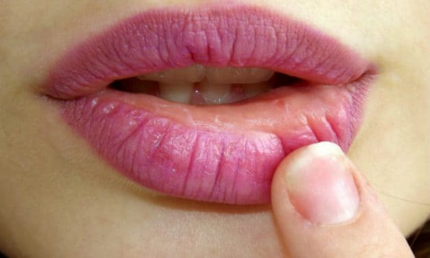What are Swollen Lips? Causes and Treatment