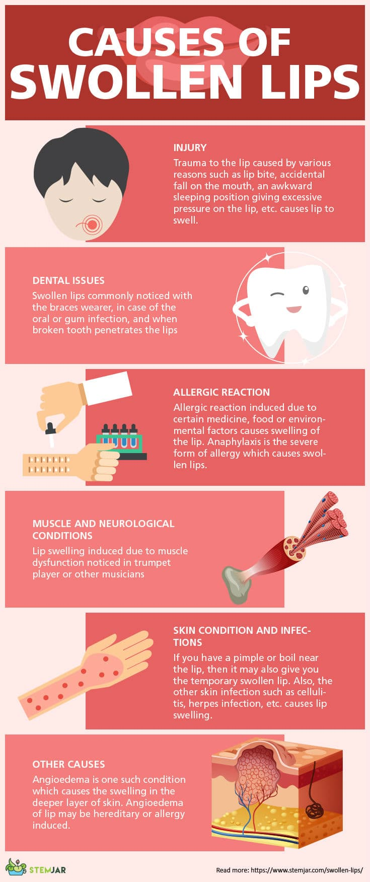 Swollen lips causes infographic-2