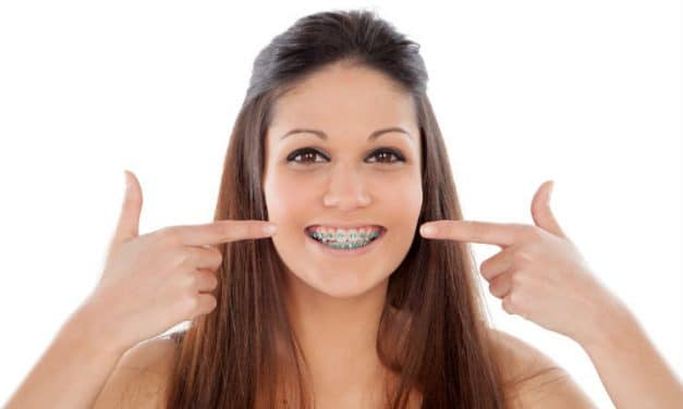 3 Ways to Floss with Orthodontic Braces