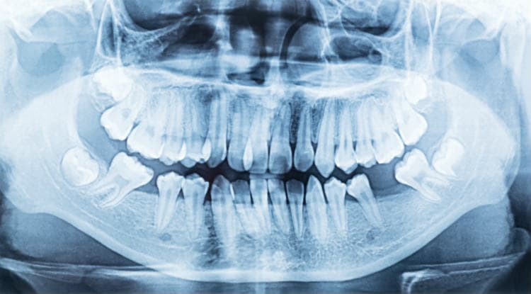 Panoramic dental x ray of mouth left and right side