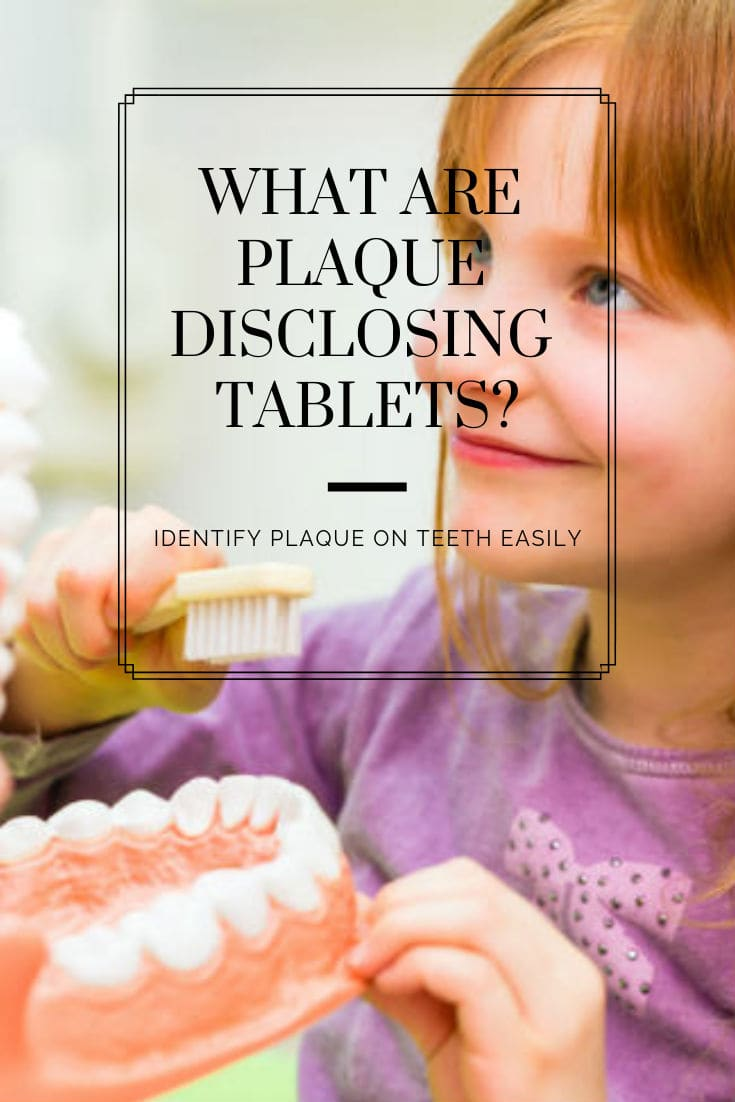 Plaque disclosing tablets are chewable tablets which contain a vegetable dye that temporarily stains the layer of plaque red or purple.