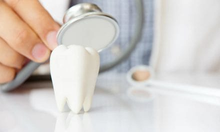 Dental Sealants Cost – Are They Worth Your Money?