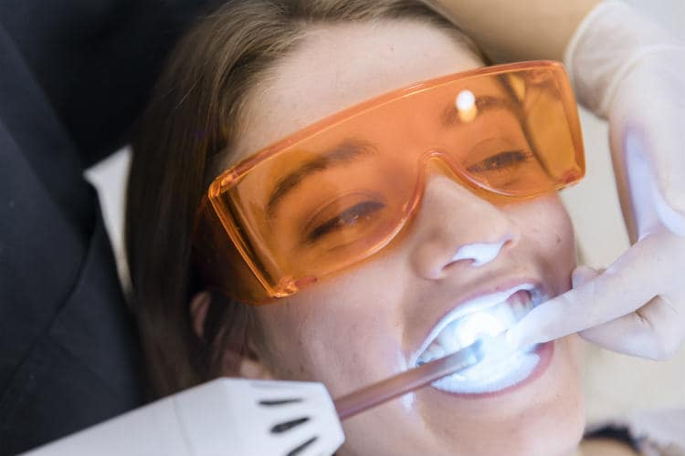 Unfolds the Clinical Effects of Laser Teeth Whitening Light
