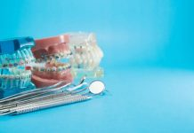 How To Clean Braces