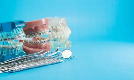 How to Clean Braces?- Cleaning Your Metal Mouth