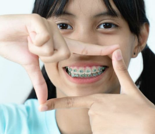 how to put rubber bands on braces