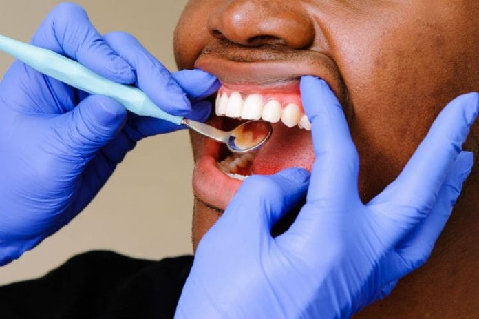 Adult Oral Health Conditions